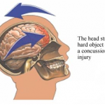 When Is It Safe To Return To Work or Sport After A Concussion?