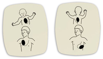 Can I Use Adult AED Pads on a Child or Infant? | Roy on Rescue